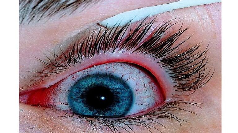 إنفلونزا العيون مرض لا علاج له   صحة وبيئة