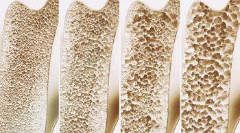 مادة جديدة تعالج هشاشة العظام