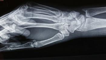 اكتشاف أقدم حالة معروفة لـ مرض تصخر العظام
