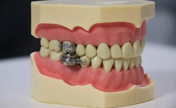 قفل الأسنان ..  جهاز يمنع الأكل للقضاء على السمنة