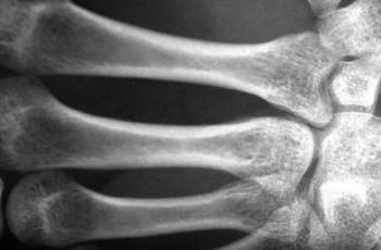 هشاشة العظام ..  الأسباب والعلاج
