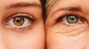 محيط العينين ..  مشاكله التجميلية عديدة والحلول متطورة