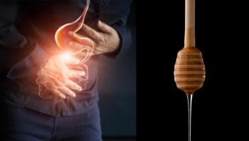 العلاجات المنزلية للقرحة