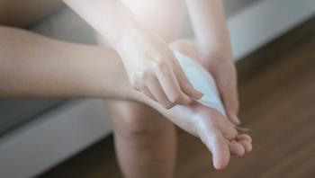 9 علاجات منزلية لعلاج جروح القدمين التي تسببها الأحذية