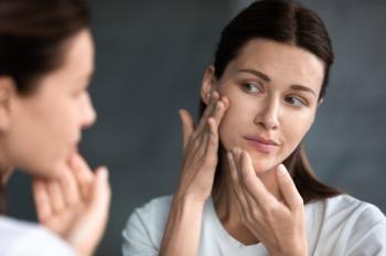 6 علامات أنّ بشرتكِ مصابة بالجفاف