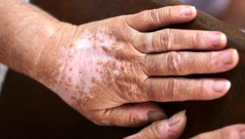 مرض يعاني منه 1% من سكان العالم ..  هذه أعراضه وطرق علاجه