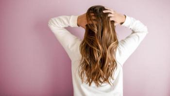 ماذا يعني التعرق المفرط في فروة الرأس؟