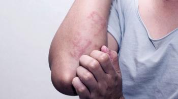 5 علاجات منزلية للتغلب على فطريات الجلد