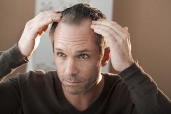 زراعة الشعر تتزايد بشكلٍ ملحوظٍ في دول الشرق الأوسط بالآونة الأخيرة