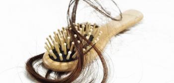 سيدة من بين اربعة يعانين من تساقط الشعر