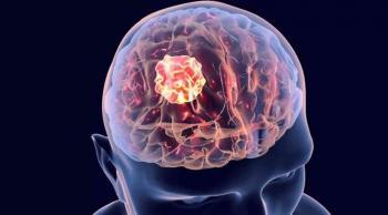 علامة على وجود ورم في الدماغ