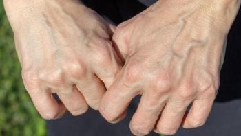 أسباب ظهور العروق الخضراء في اليدين وخلطات طبيعية لعلاجها