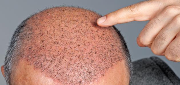زراعة الشعر والسوق السوداء مشكلة عالمية