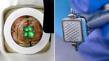 ابتكار عين اصطناعية يمكن ربطها بشريحة في الدماغ لعلاج العمى