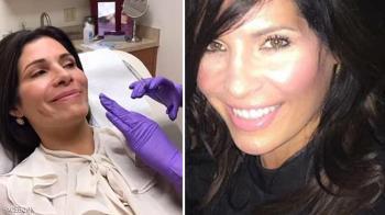 تجري 8 عمليات جراحية من أجل ميلانيا ترامب