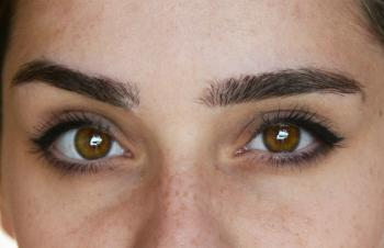تعرّف على نِسب شيوع ألوان العيون المختلفة حول العالم