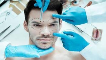 مستشفى روسي ينوي إجراء عمليات زرع الوجه