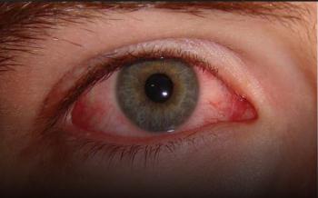 4 علامات تظهر على العين تؤكد الإصابة بكورونا