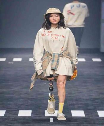 نيو يو ..  عارضة أزياء صينية من ذوي الاحتياجات الخاصة