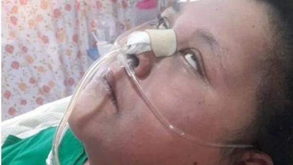 نهاية قاسية ..  إصابة المصرية صاحبة النصف طن بالشلل
